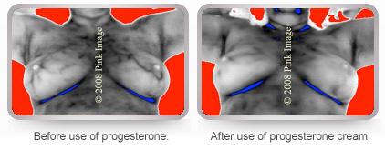 Hormone breast growth